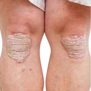 Psoriasis - CCube Homeopathy