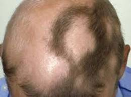 Alopecia Areata-CCube Homeopathy