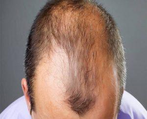 Alopecia-CCube Homeopathy