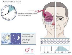 cluster headache-CCube Homeopathy